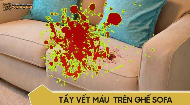 Cách làm sạch vết máu trên ghế sofa